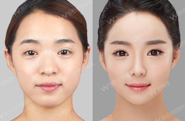 鼻整形 費用 韓国