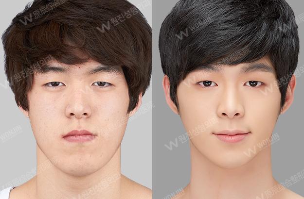 顎 整形外科 写真